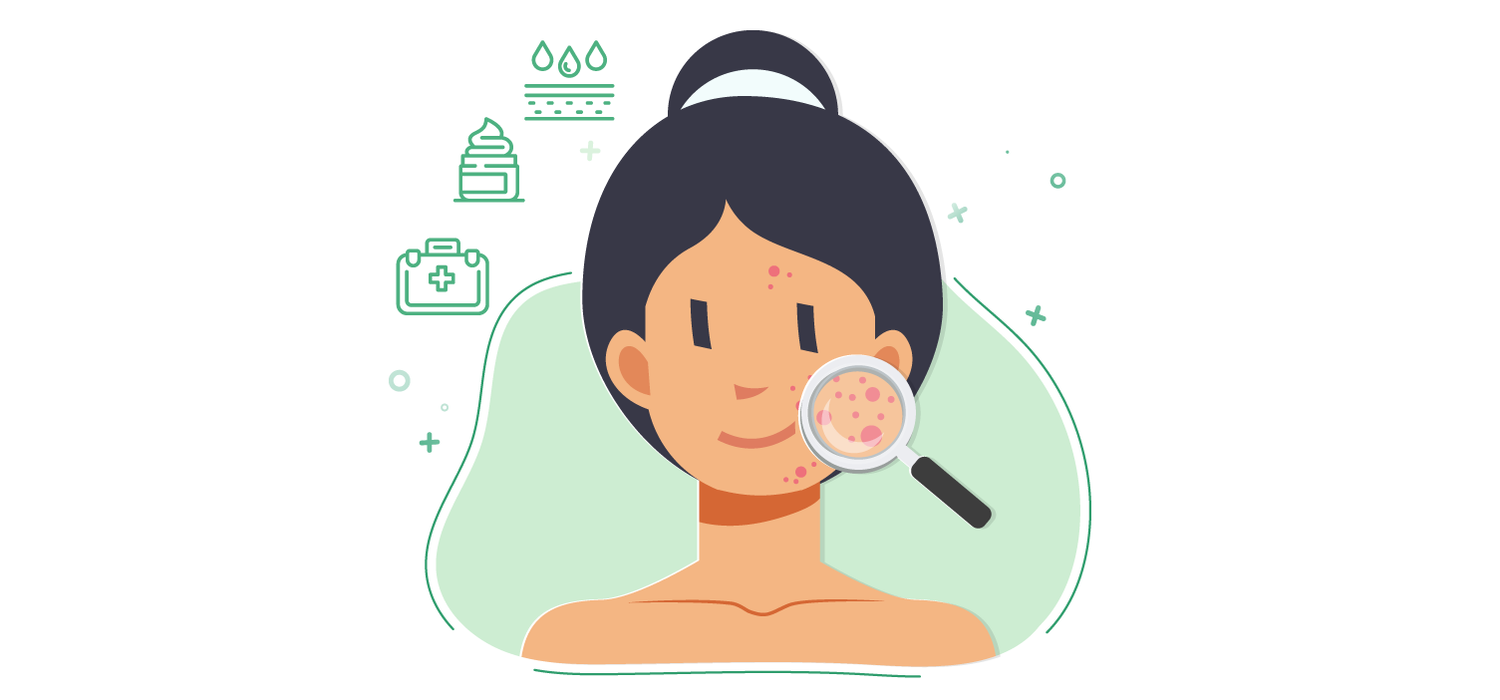 illustrated woman with acne